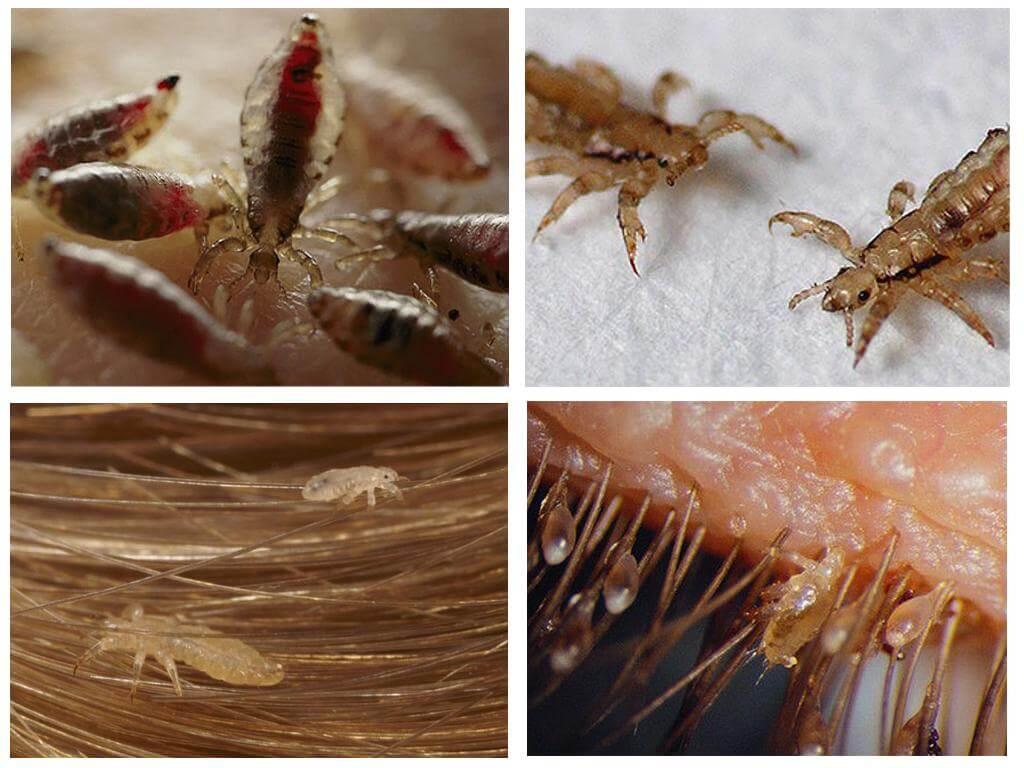 Как в домашних условиях избавится от бельевых вшей в домашних условиях