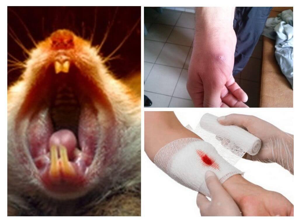 Что делать если укусила мышка за палец