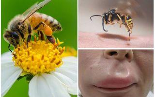 Что делать, если пчела укусила в губу