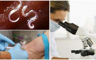 Анализ крови на гельминты у взрослых