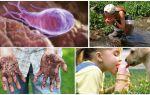 Цисты лямблий в кале у ребенка: как выглядят и чем лечить