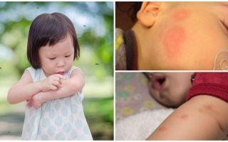 Укусы комаров на коже взрослого или ребенка