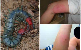 Что делать, если укусила сколопендра