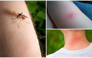 Чем отличается укус комара от укуса клопа или клеща