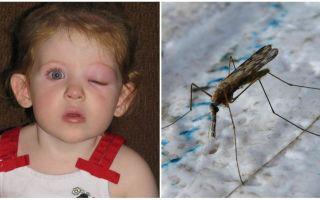Что делать, если у ребенка после укуса комара опух глаз
