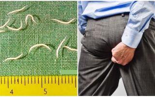Симптомы и лечение остриц у взрослых