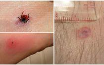 Симптомы и лечение укуса энцефалитного клеща у человека