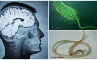Симптомы и лечение паразитов в мозге человека
