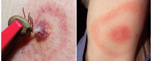 Что такое болезнь Лайма, её симптомы, лечение и фото