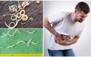 Может ли болеть от глистов живот (кишечник, желудок), симптомы и лечение