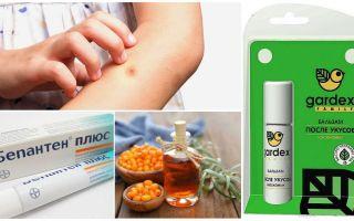 Магазинные и народные средства от укусов комаров и мошек