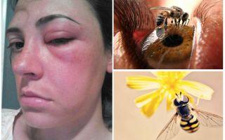 Что делать, если пчела укусила в глаз, и он опух