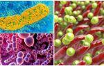 Факультативные и облигатные паразиты