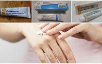 Как и чем избавиться от укусов комаров в домашних условиях