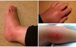 Как снять отек от укуса насекомого, если опухла и покраснела нога, рука или глаз