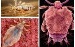 Как выглядят вши и гниды на голове у человека