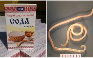 Как избавиться от глистов с помощью соды