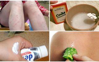 Как убрать красные пятна от укусов комаров