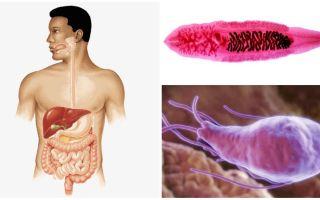 Симптомы и лечение глистов в печени