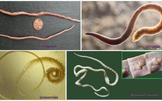 Кишечные паразиты человека