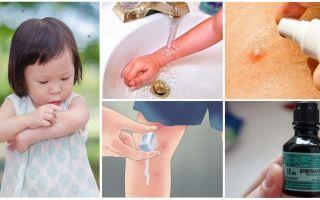 Как и чем лечить укусы комаров у ребенка