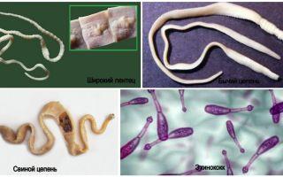 Симптомы и лечение ленточных глистов у человека