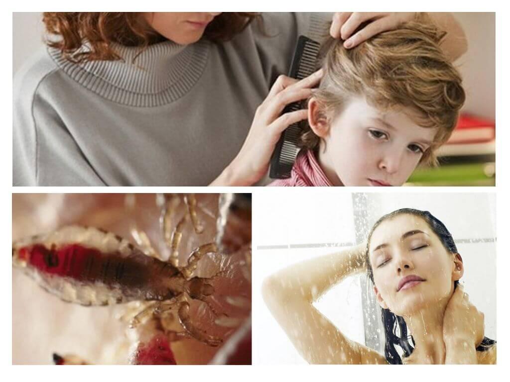 Основные меры профилактики педикулеза вшивости