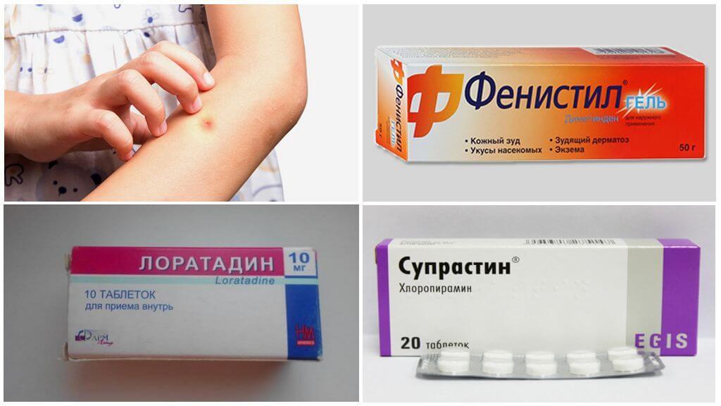 Лекарства против аллергии на укус комара