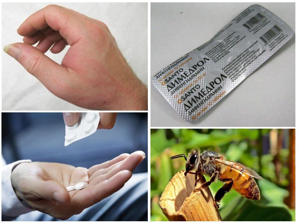 Лечение аллергии при укусе
