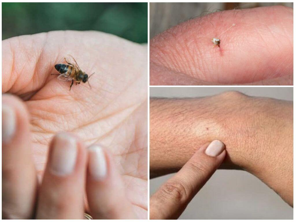 Пчела, её укус и жало