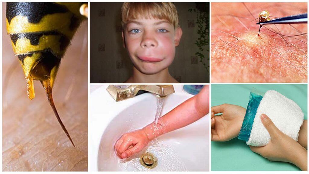 Первая помощь при укусе шершня