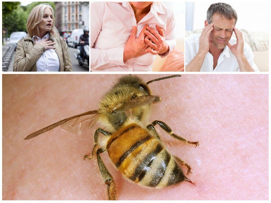 Последствия укуса пчелы