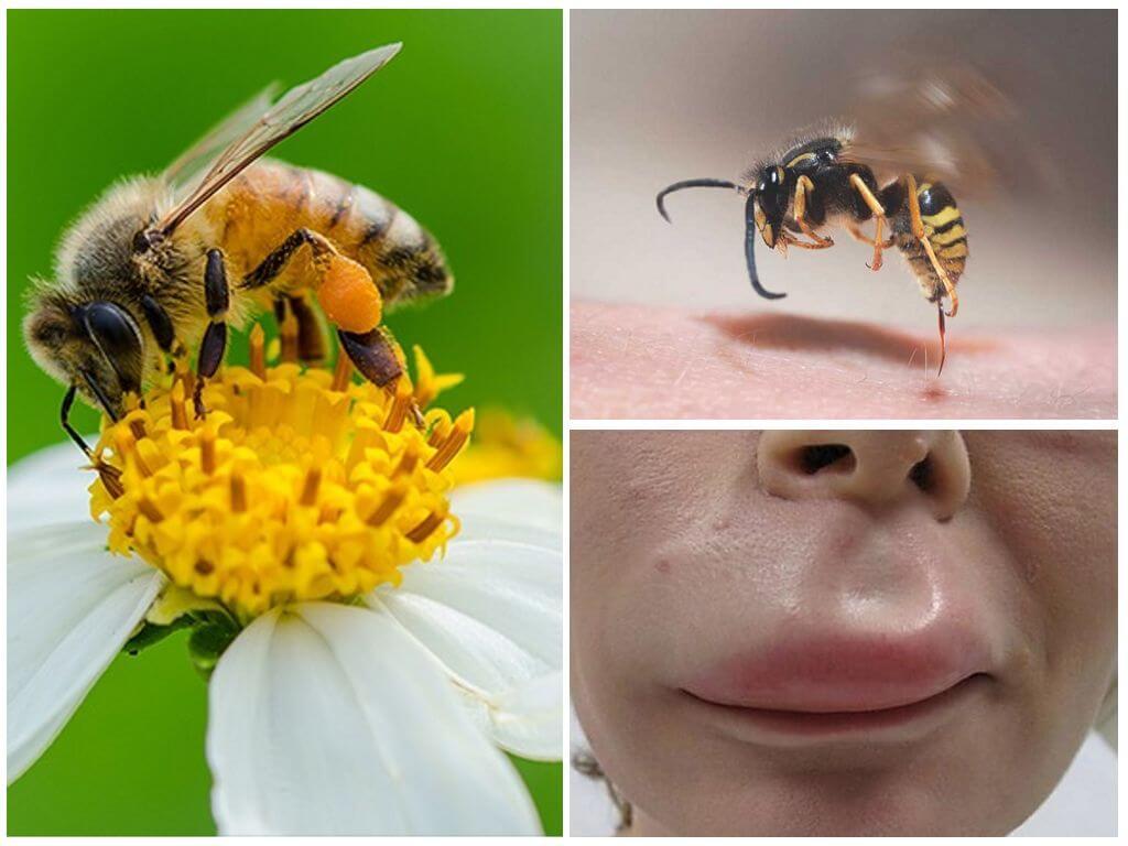 Укус пчелы в губу