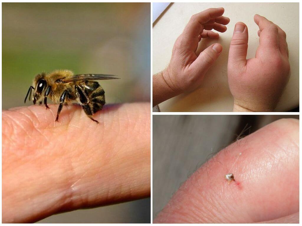 Вред от укуса пчелы