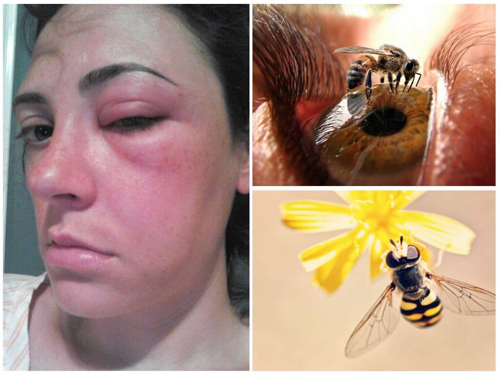 Пчелиный укус в глаз