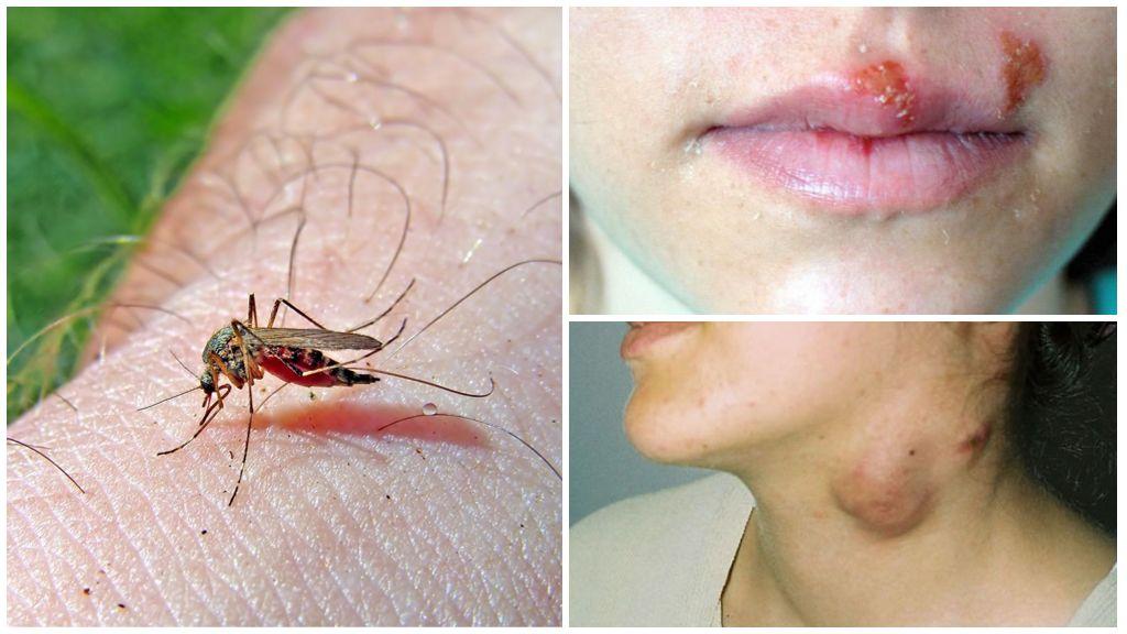 Малярия и туляремия от комаров