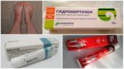 Лечение отека гормональными препаратами