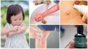 Первая помощь при укусе комара у детей