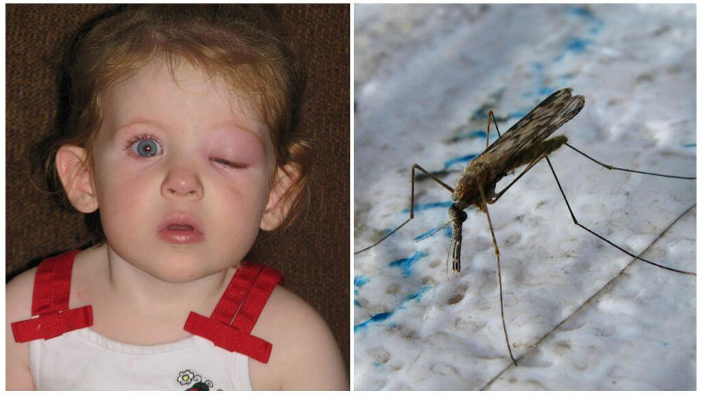 Опух глаз у ребенка от укуса комара