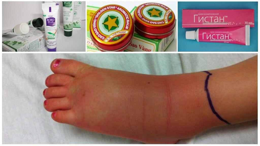 Лечение опухоли ноги натуральными средствами