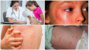 Высыпания на коже, схожие с шишками после укуса комара
