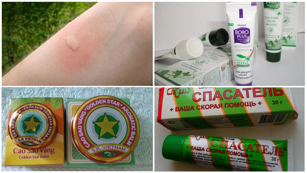 Лечение укуса комара