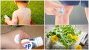 Народные рецепты лечения укусов комаров