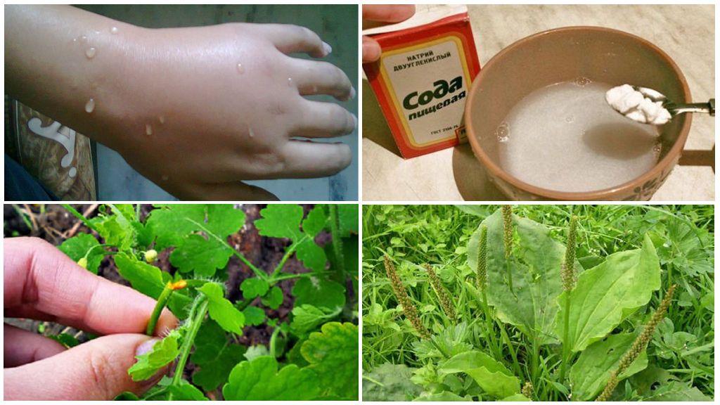 Народные рецепты от укуса комара