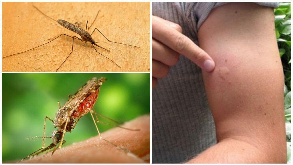Укус малярийного комара