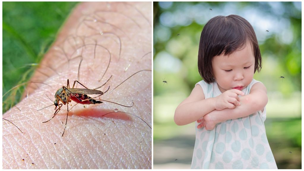Через сколько дней проходит укус комара