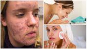 Лечение демодекоза на лице у человека