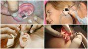 Извлечение мухи из уха