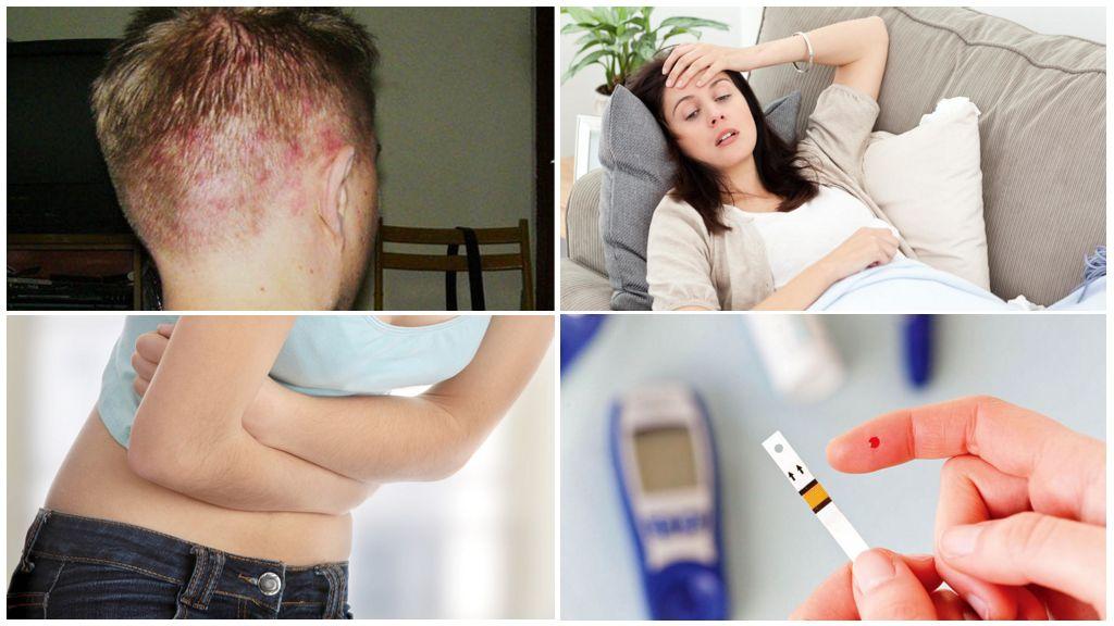 Причины демодекоза кожи головы