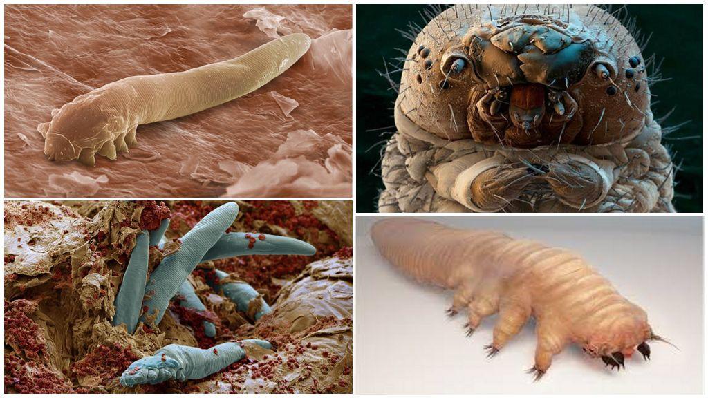 Разновидности демодекоза